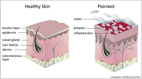 Psoriasis_schematic